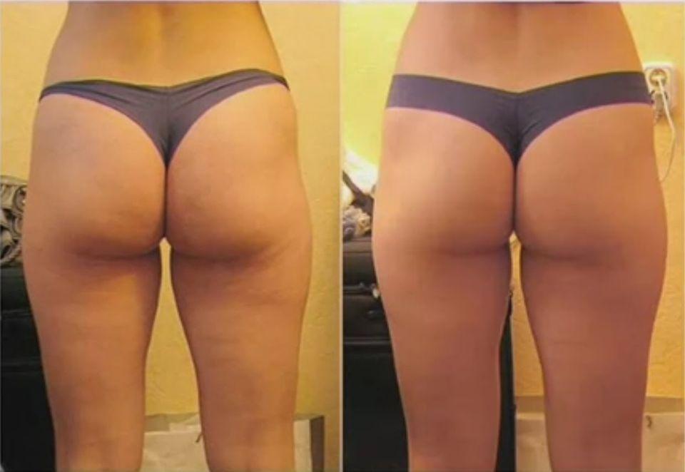 LPG-массаж: фото до и после