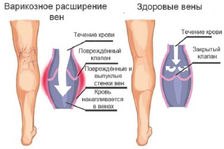 Варикозное расширение вен на ногах, операция и реабилитация