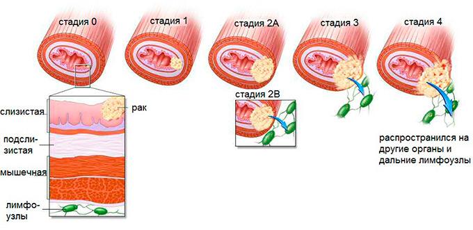 Методы лечения рака поджелудочной железы. 4 стадия рака
