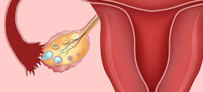 Симптомы, причины и лечение кисты яичника у женщин