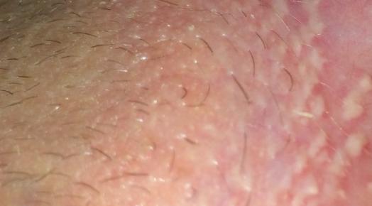 Белый налет на половых губах при кандидозе