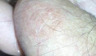 Почему у мужчин чешутся яички