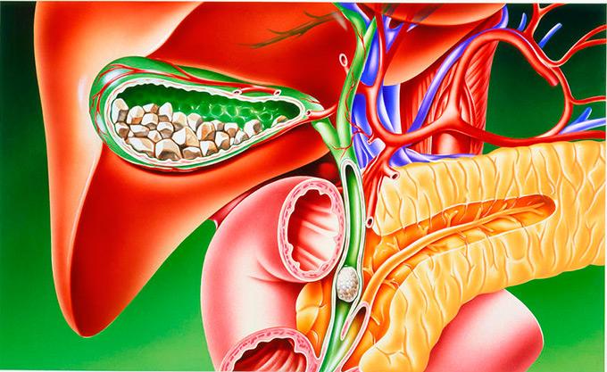 Камни в поджелудочной железе или панкреолитаз: полная информация по удалению камней
