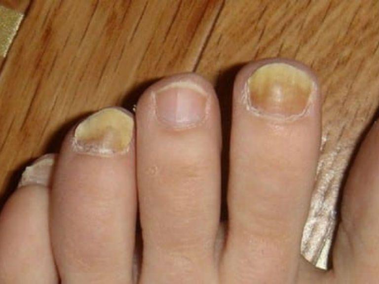 Эффективное средство от грибка ногтей на ногах