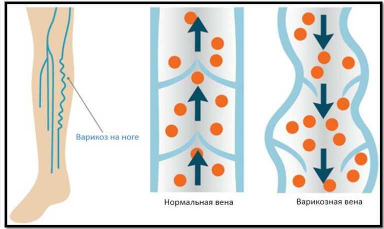 Варикозное расширение вен на ногах, симптомы и лечение