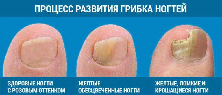 Лучшее средство от грибка ногтей на ногах