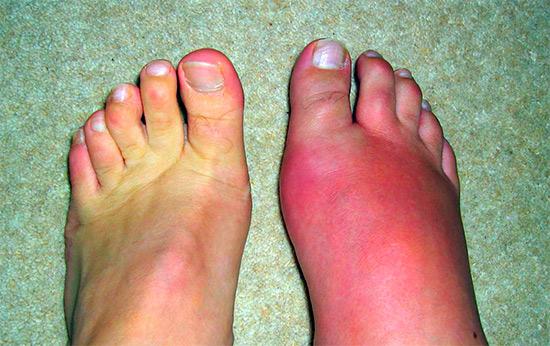Псориатический артрит или как защитить мелкие суставы?