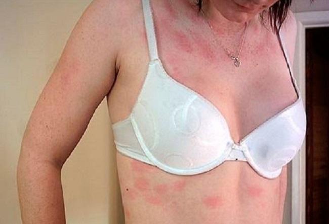 Аллергический дерматит: симптомы, причина и лечение