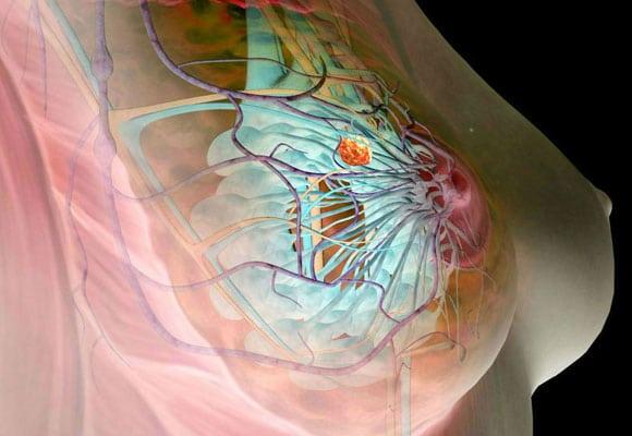 Мягкие ткани молочной железы