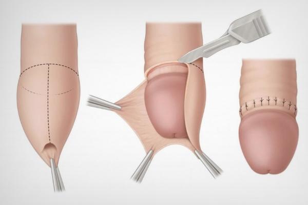 Обрезание крайней плоти при фимозе