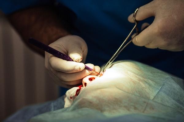 Хирургическое удаление дерматофибромы