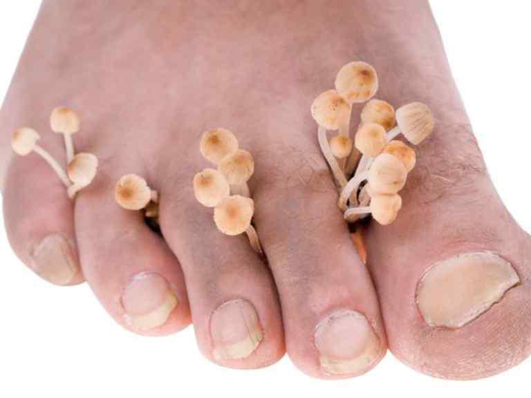 Лечение грибка ногтей народными средствами самые эффективные