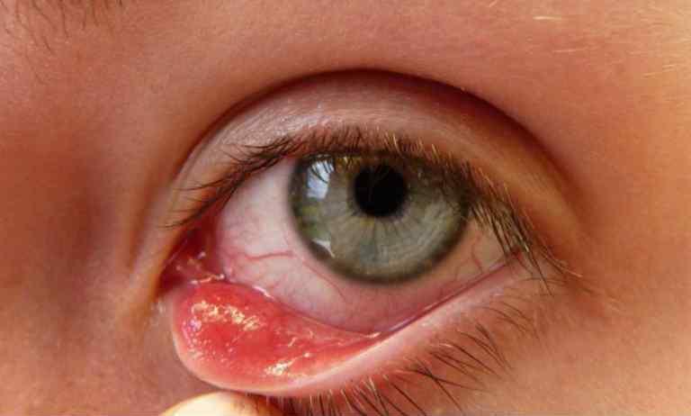 Ячмень на глазу, причины появления и лечение