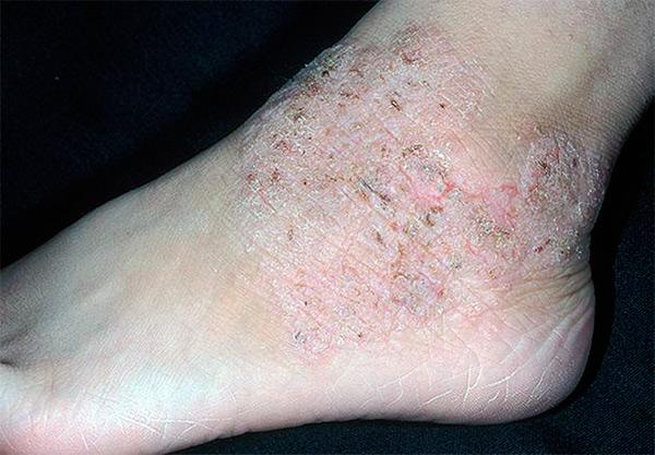 Атопический дерматит – что это и как с ним бороться?