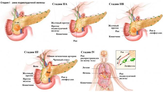 Сколько остается жить при раки поджелудочной железы 4 стадии? Насколько эффективна химиотерапия. Симптомы и лечение.