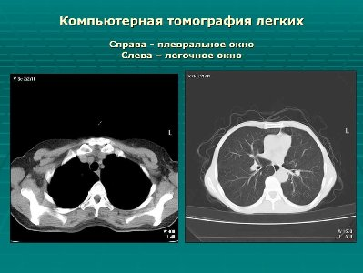 tomografiya-legkogo