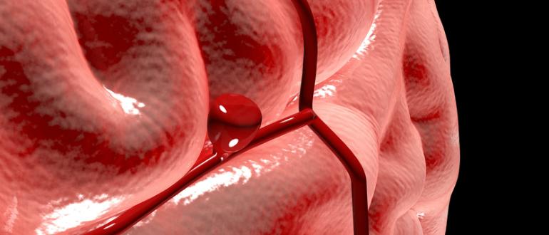Аневризма и геморрагический инсульт