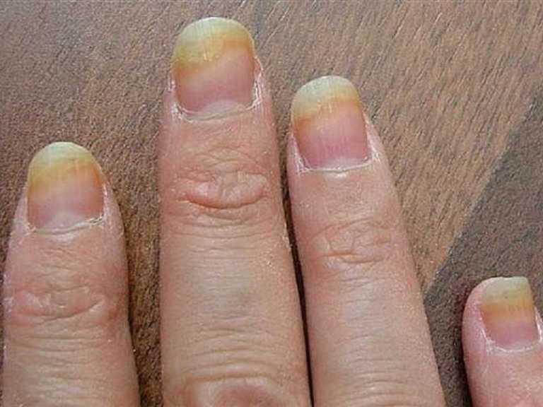 Грибок ногтей на руках, фото, лечение