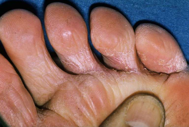 Грибок на ногах, симптомы и лечение, фото