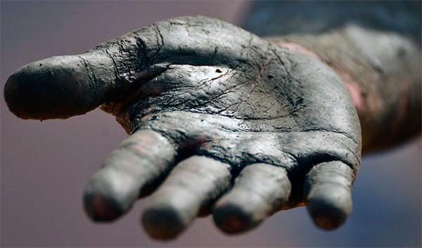 Как не перепутать дерматит на руках с другим кожным заболеванием?