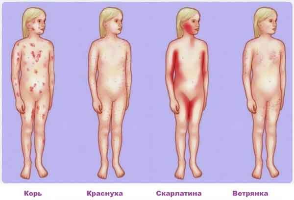 Инфекционный дерматит симптомы и диагностика