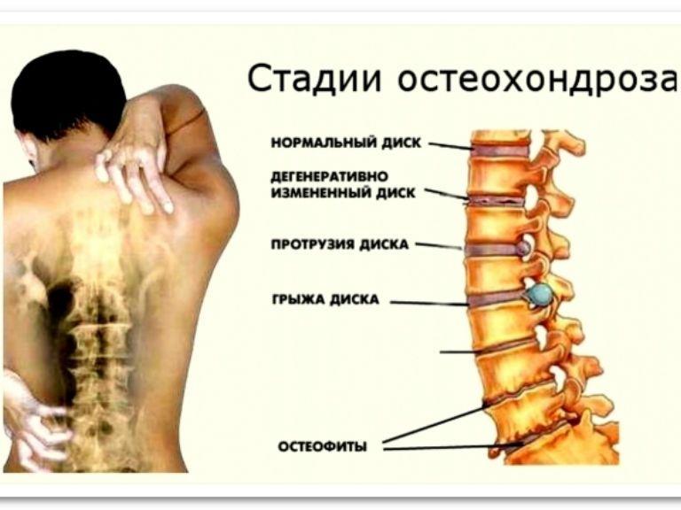 Шейный остеохондроз, симптомы и лечение дома