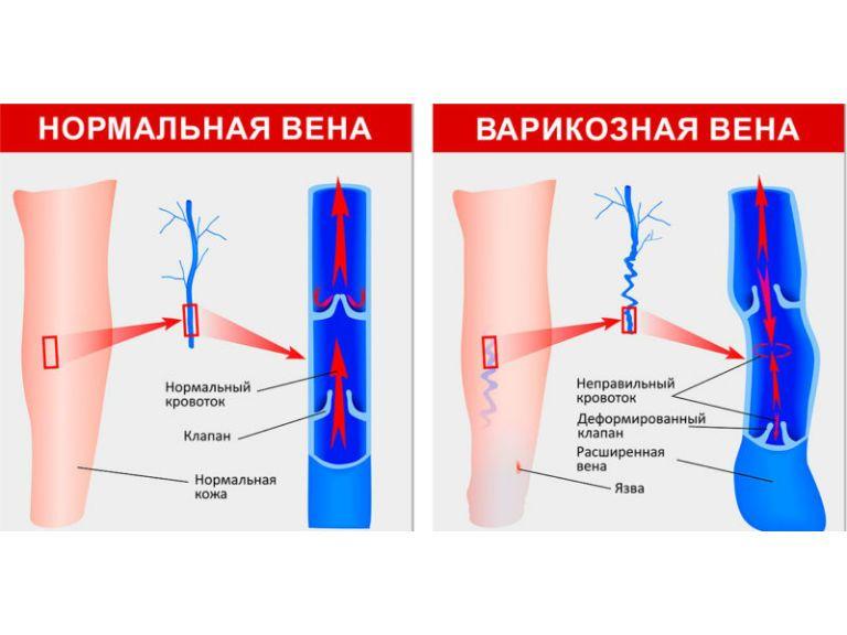 Варикозная болезнь вен нижних конечностей