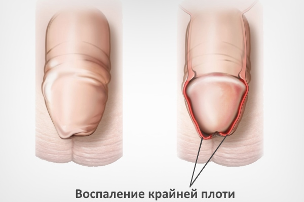 Воспаление крайней плоти