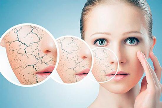 Популярные методы лечения и симптомы нейродермита. Советы от наших авторов