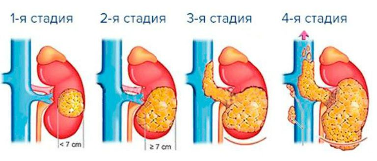 Рак желудка 4 степени с метастазами, сколько живут