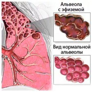 Альвеолы при эмфиземе