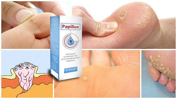 Медикаментозный метод лечения папиллом