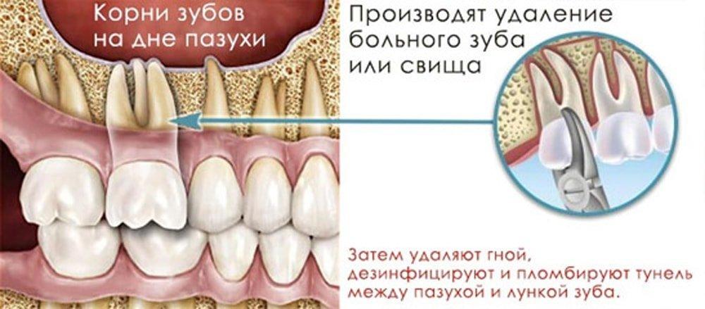 могут ли при гайморите болеть зубы
