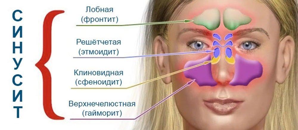 синусит и гайморит в чем разница