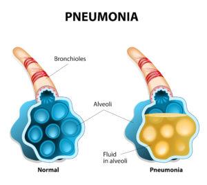 Причины одышки при пневмонии