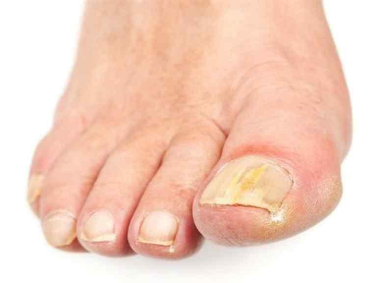 Народное средство от грибка ногтей на ногах быстро
