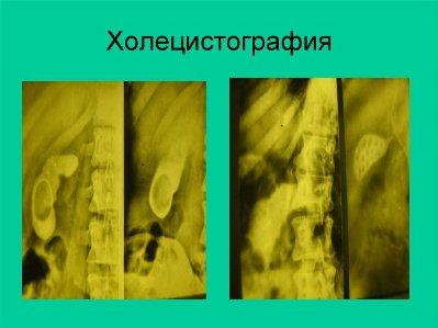 holetsistografiya-s-kontrastom