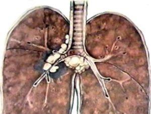 Первичный туберкулез лимфоузлов