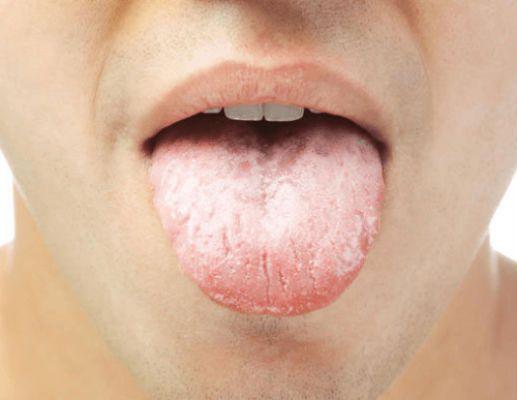 Молочница у мужчин симптомы лечение
