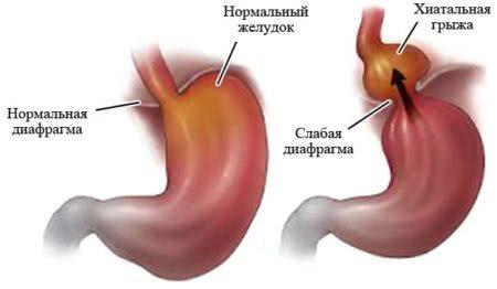 Нормальная и слабая диафрагма