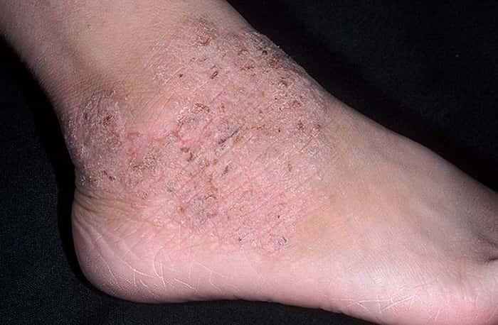 Виды дерматита на ногах