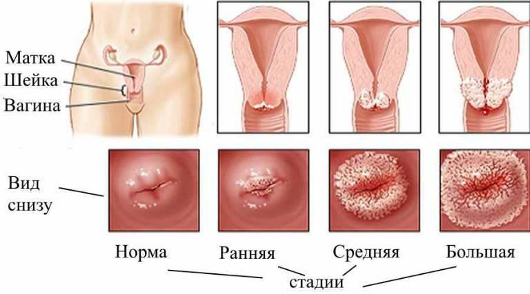 Что такое эрозия шейки матки и от чего она появляется