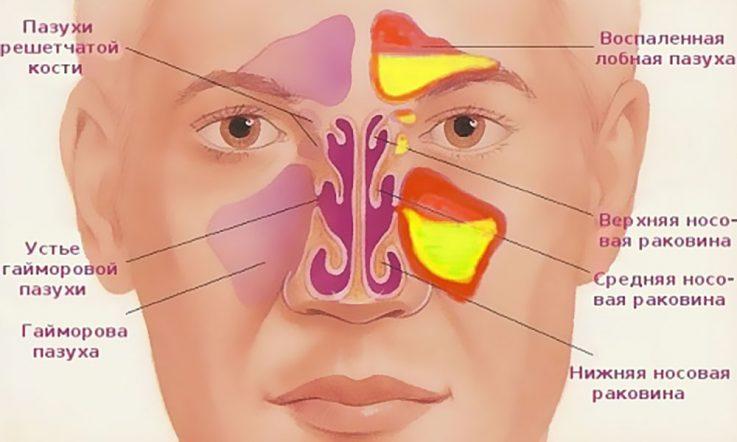 Заложенный нос при гайморите