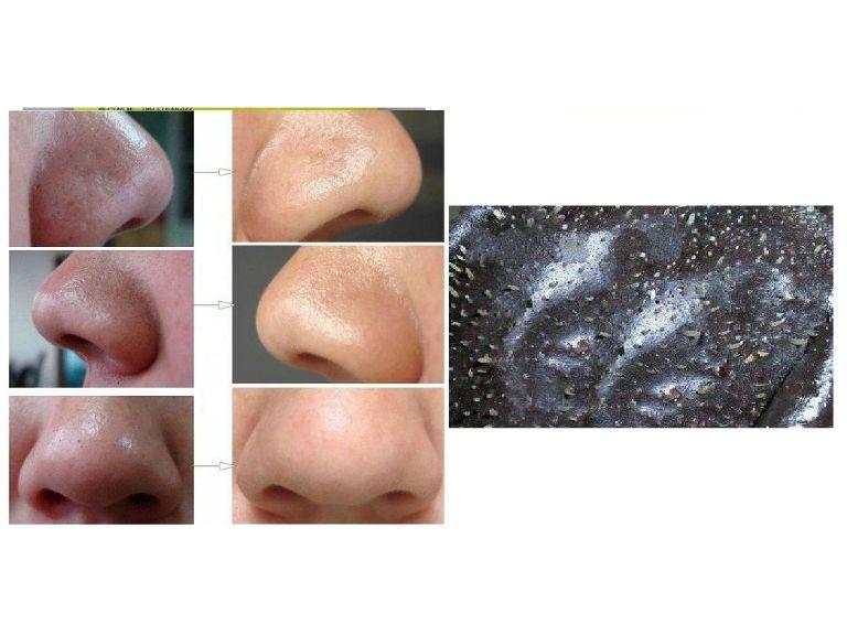 Желатиновая маска для лица от черных точек с активированным углем