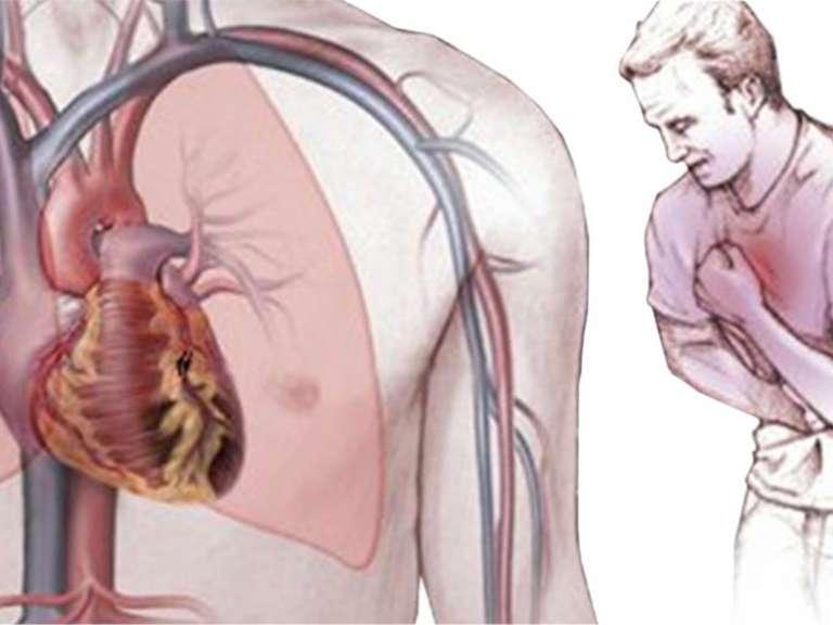 Стенокардия симптомы, что надо делать, что нельзя делать