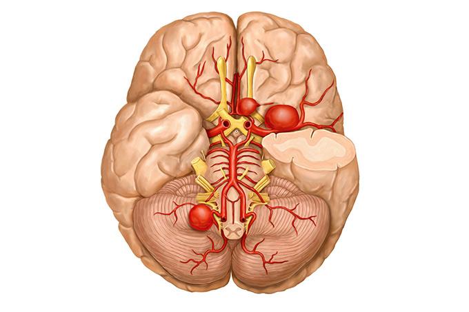 Частые локализации аневризм в головном мозге