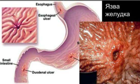 Язва желудка симптомы лечение и диета