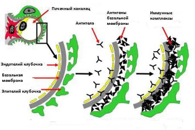 Патогенез синдрома Гудпасчера