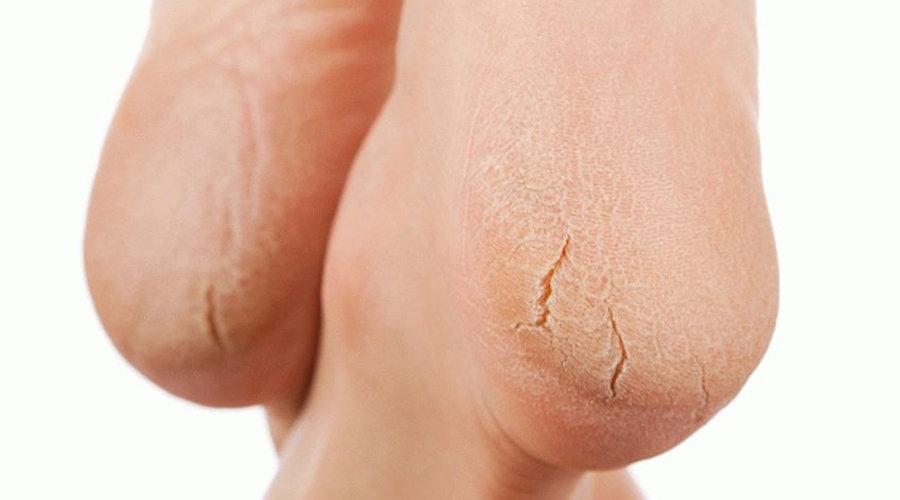 Трещина на пятке: причина появления, лечение