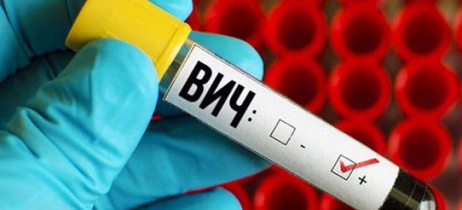 Первые признаки и симптомы ВИЧ инфекции у женщин